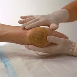 32 - Yatak yaralar�n� iyile�tirmede kullan�lan �r�nler