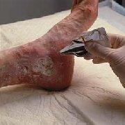 pudra - Yatak yaralarını iyileştirmede kullanılan ürünler